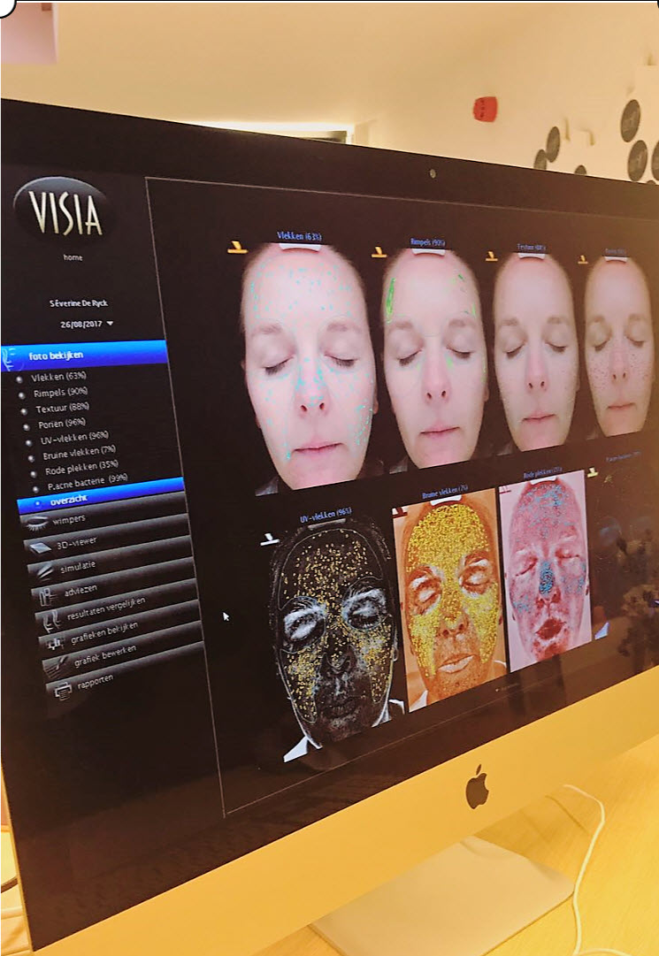 Happy Skin Kafé skin analysis huidanalyse visia